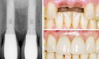 dental-implant-photo-1.jpg
